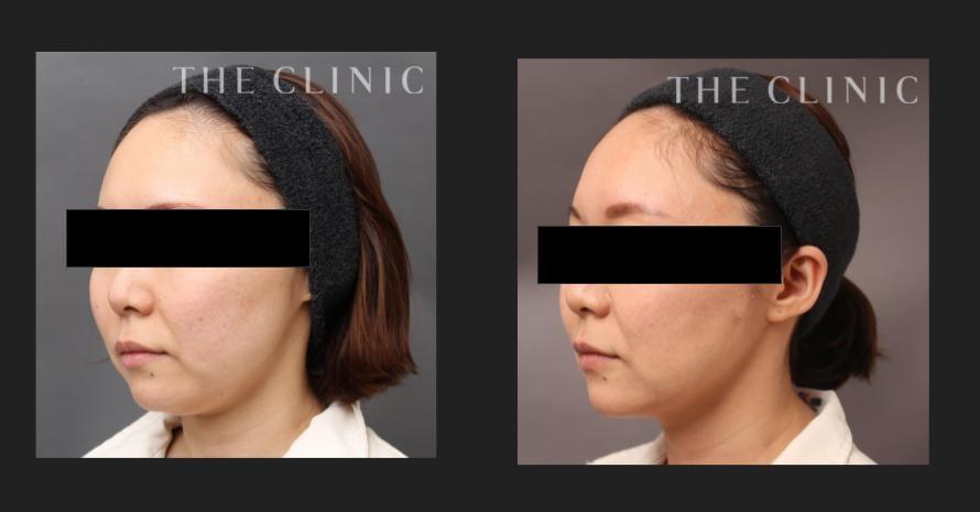 顔(頬・顎)のベイザー脂肪吸引の症例写真