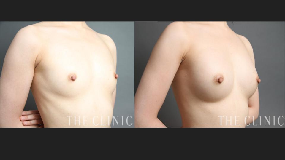 コンデンスリッチ豊胸×BRAVA症例/28歳女性・授乳経験なし
