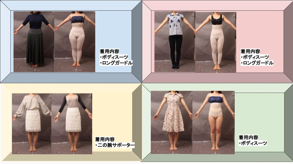 脂肪吸引後の圧迫(ガードル着用画像)