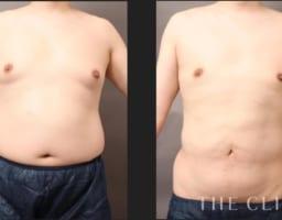 男性でも胸が膨らむ? 女性化乳房の種類と治療法【症例あり】
