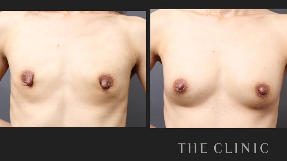 授乳後のコンデンスリッチ豊胸と乳頭縮小