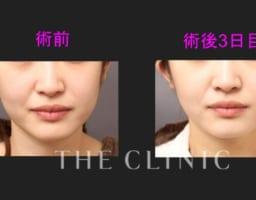 実はあんまり腫れない? 顔の脂肪吸引の術後3日の写真を公開!