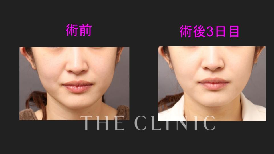 顔の脂肪吸引の術前後比較