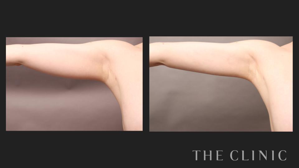 脂肪吸引した二の腕