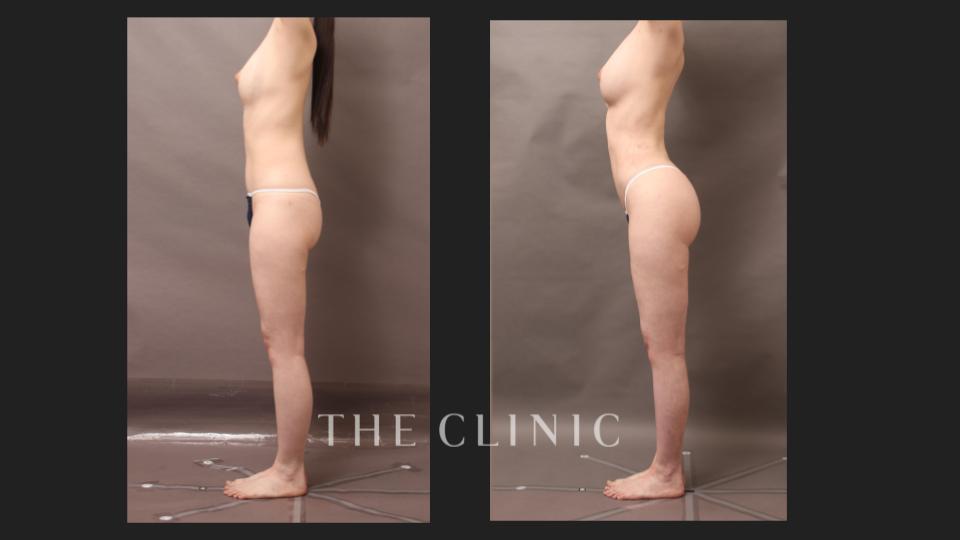 トータルボディデザインの症例(脂肪注入豊胸と脂肪吸引)横アングル