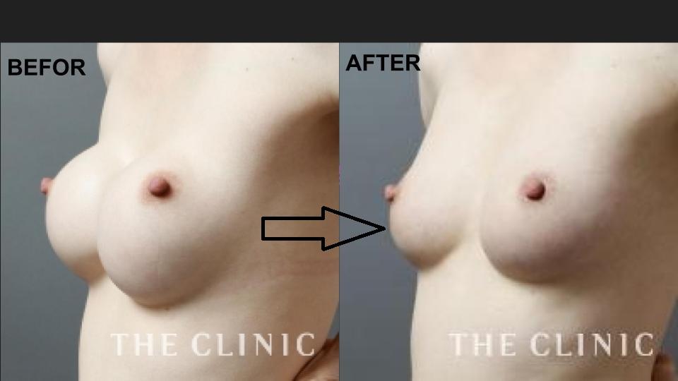シリコンバッグ除去と同時の脂肪注入豊胸