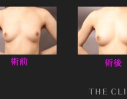 脂肪注入豊胸でバストアップ♡−水着を着こなす2018年夏−