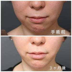 顔(頬・あご)の脂肪吸引の症例画像(20代女性)