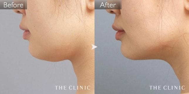 顔(頬・あご)の脂肪吸引の症例画像(40代女性)