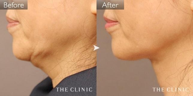 顔(頬・あご)の脂肪吸引の症例画像(60代女性)