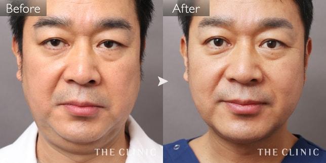 顔(頬・あご)の脂肪吸引の症例画像(40代男性)