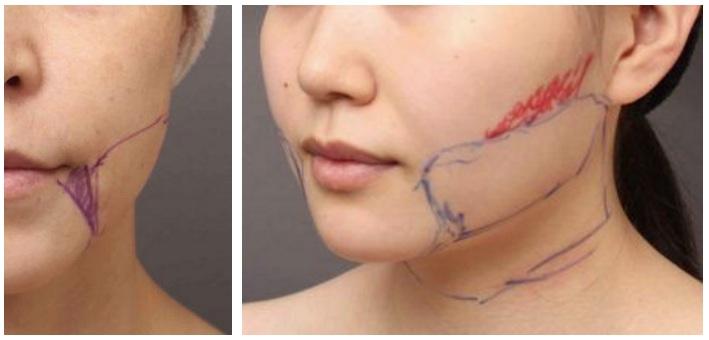 顔(頬・あご)の脂肪吸引のデザイン画像