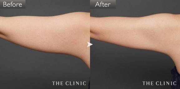 二の腕の脂肪吸引の症例画像①(20代女性)