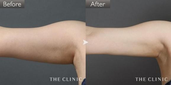 二の腕の脂肪吸引の症例画像②(20代女性)