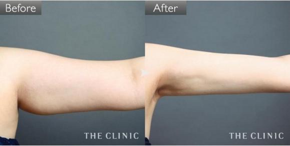 二の腕の脂肪吸引の症例画像③(20代女性)