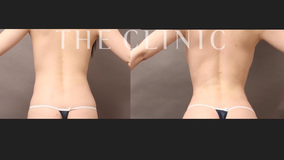 腰の脂肪吸引ビフォーアフター