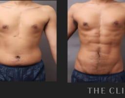 目指せシックスパック〜男性専用の脂肪吸引でモテBODYに〜