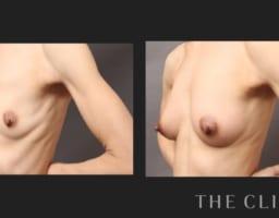 BMI16のモニターゲストに行った脂肪注入豊胸の結果は…?
