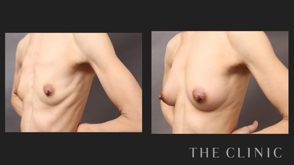 脂肪注入豊胸の症例ビフォーアフター