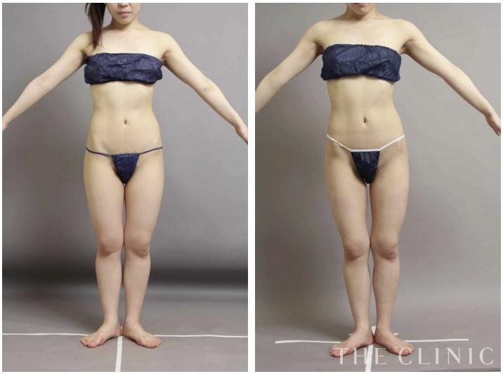 足(太もも)の脂肪吸引の症例画像 正面