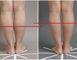 これぞ美脚♡ 足(太もも・ふくらはぎ・足首)の脂肪吸引の症例3選