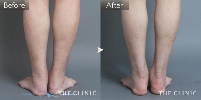 足(足首)の脂肪吸引の症例画像