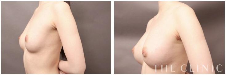 セルチャー豊胸(培養幹細胞豊胸)の症例①:大橋ドクター