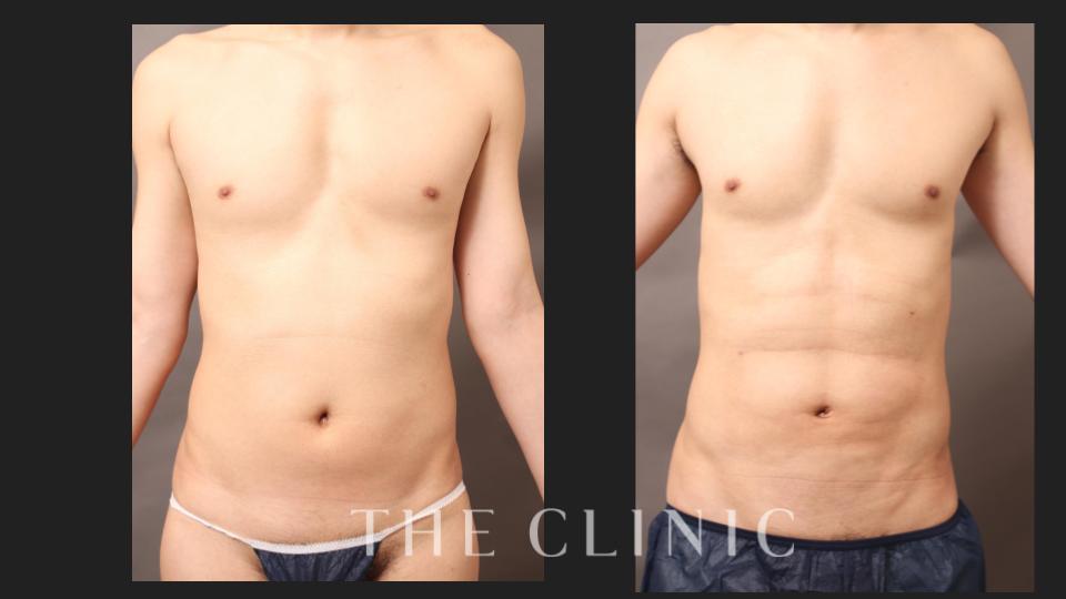 男性のお腹の脂肪吸引の症例