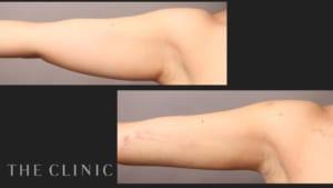 二の腕の脂肪吸引の症例