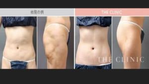 脂肪吸引の失敗修正の症例