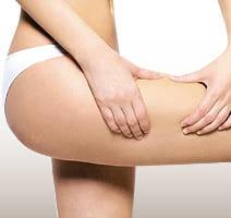 他院の脂肪吸引の失敗修正治療
