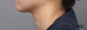 ベイザー脂肪吸引《頬顎下》