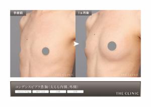 皮膚拡張器:ビブラ